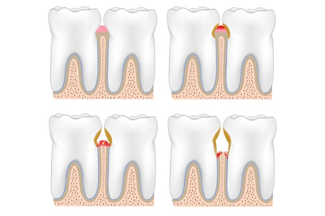 Parodontologie | Zahnärztin Bensheim